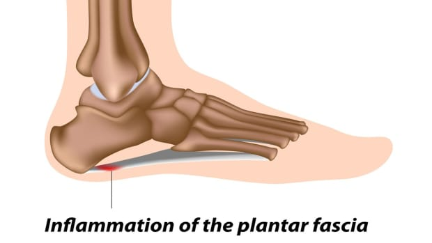 ZC. How to Prevent & Treat Plantar Fasciitis | Foot Care Promo Image