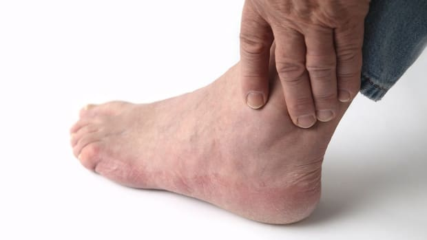J. How to Recognize Gout Symptoms | Foot Care Promo Image