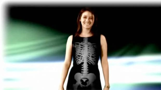 K. How to Prevent Osteoporosis Promo Image