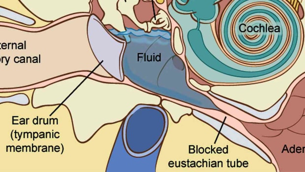 O. How to Treat Fluid in the Ear Promo Image
