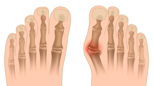 ZI. How to Know If You Have a Bunion | Foot Care Promo Image