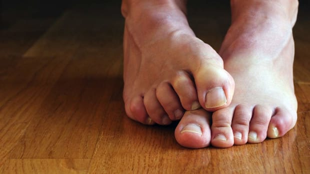 U. How to Prevent & Treat Claw Toes | Foot Care Promo Image
