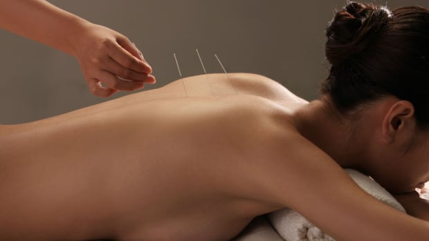 ZK. Acupuncture to Treat Alcoholism Promo Image