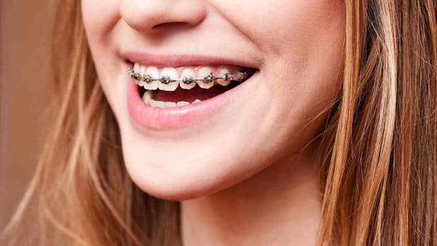 H. Basics of Teeth Braces Promo Image