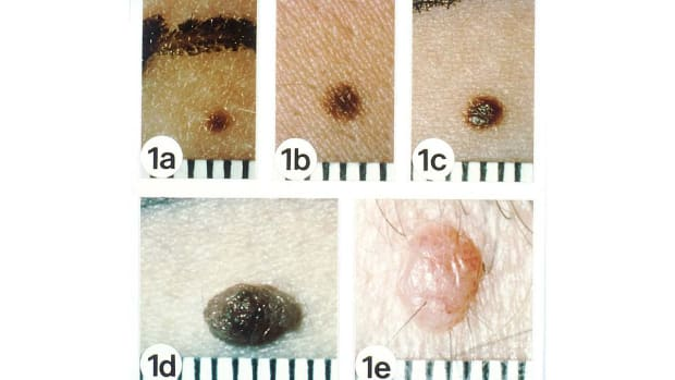 ZZC. Skin Cancer & Raised or Elevated Moles Promo Image