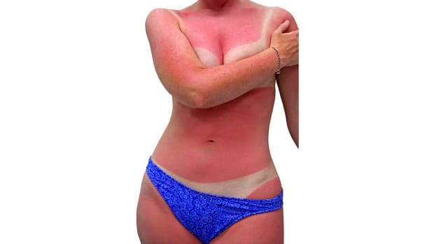 ZI. Can a Sunburn Cause Skin Cancer? Promo Image