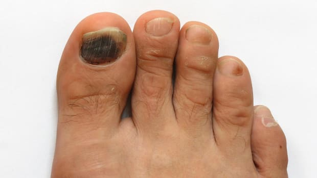 O. How to Prevent Toenail Fungus | Foot Care Promo Image