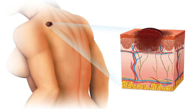 G. How Do You Get Skin Cancer? Promo Image