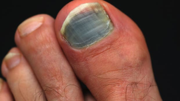 L. How to Prevent & Treat Black Toenail | Foot Care Promo Image