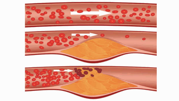 O. What Is Peripheral Vascular Disease? Promo Image