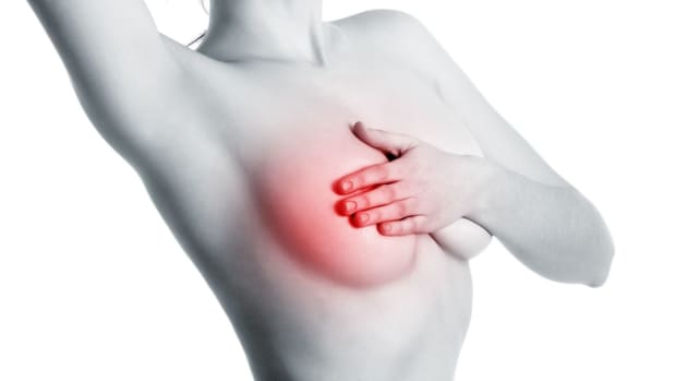 G. What Is Inflammatory Breast Cancer? Promo Image