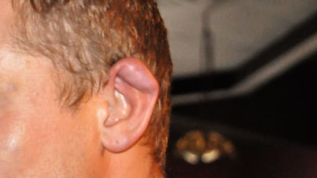 R. What Is Cauliflower Ear? Promo Image