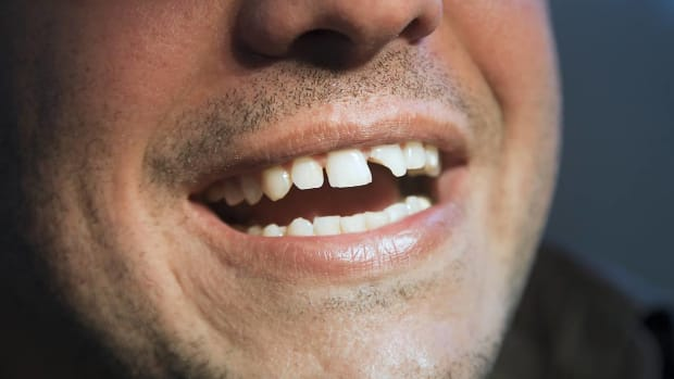 P. How to Deal with Broken Teeth Promo Image