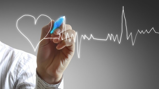 N. What Antioxidant Vitamins Reduce Cardiovascular Disease? Promo Image