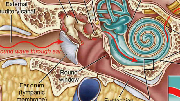 D. What Is a Middle Ear Infection? Promo Image