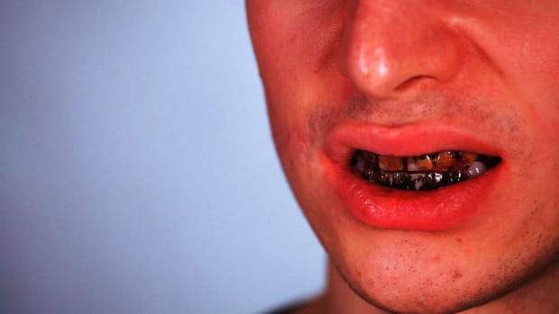 ZJ. How to Do the Teeth for Zombie Special FX Makeup Promo Image