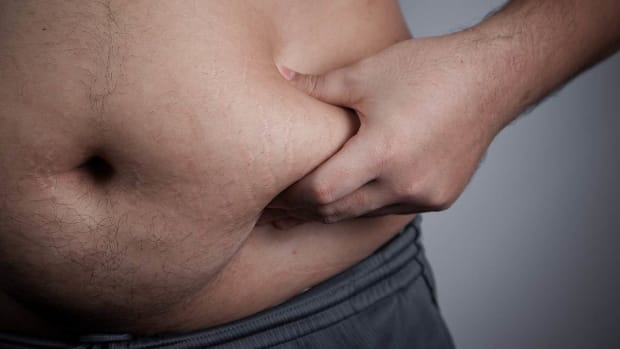 ZZI. Is Liposuction a Good Idea for Obese People? Promo Image