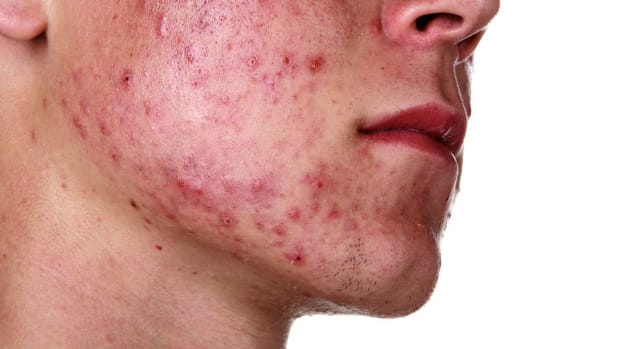 ZO. How to Control & Treat Severe Acne Promo Image
