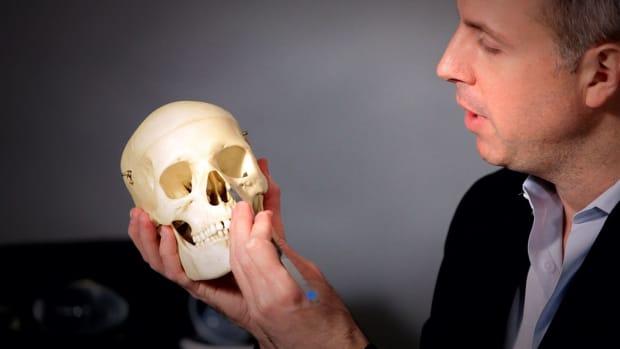 ZE. Are Nasal Bones Broken for a Nose Job? Promo Image