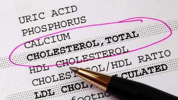 ZA. What Causes Atherosclerosis aka Hardening of the Arteries? Promo Image