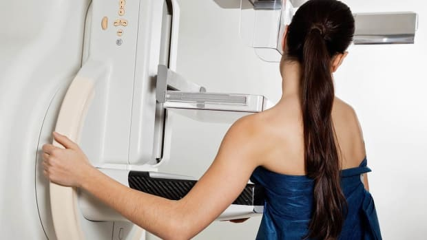 I. Common Breast Cancer Myths Promo Image